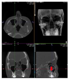 tc-massiccio-facciale-cone-beam-newtom