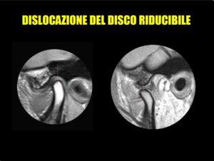 dislocazione_disco_1_RM_temporo-mandibolare